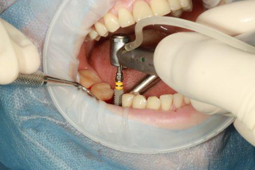 Presupuesto de implantes dentales en Getafe